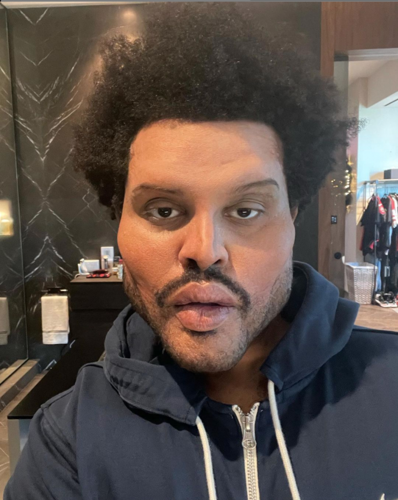 The Weeknd with prosthetics on