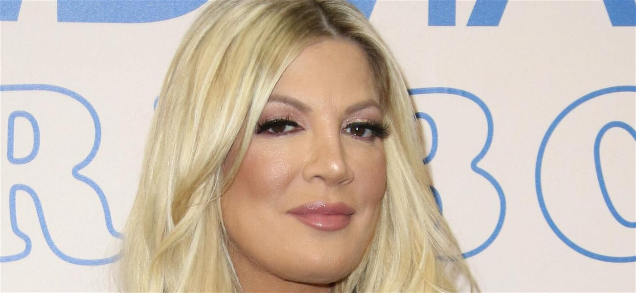 Tori Spelling Comes Clean About Plastic Surgery Rumors